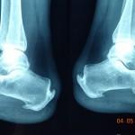 X-Ray taken by a heel pain podiatrist in Essendon