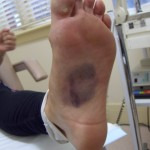 Bruised foot being examined by our sports podiatrist in Essendon